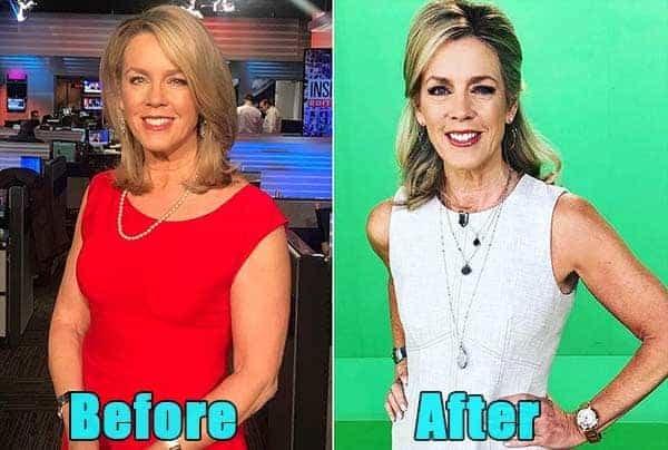Image of Deborah Norville weight loss before and after