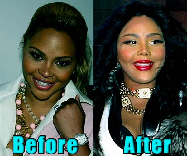 Lil Kim Before And After Plastic Surgery 2019 Realitystarfacts