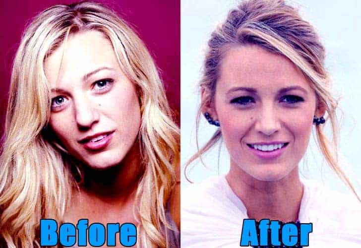 Image of Blake Lively plastic surgery of nose before and after