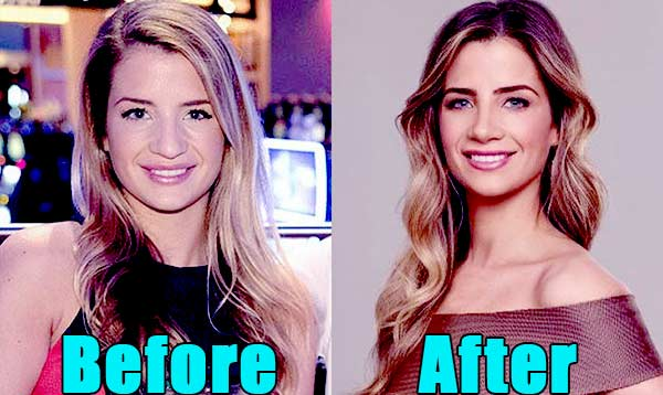 Image of Naomie Olindo Nose Job before and after