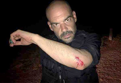 "Aaron Goodwin from ""Ghost Adventures"" accident."