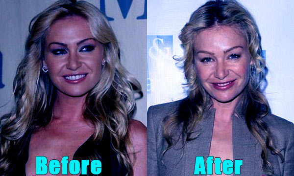 Image of Portia De Rossi plastic surgery before and after